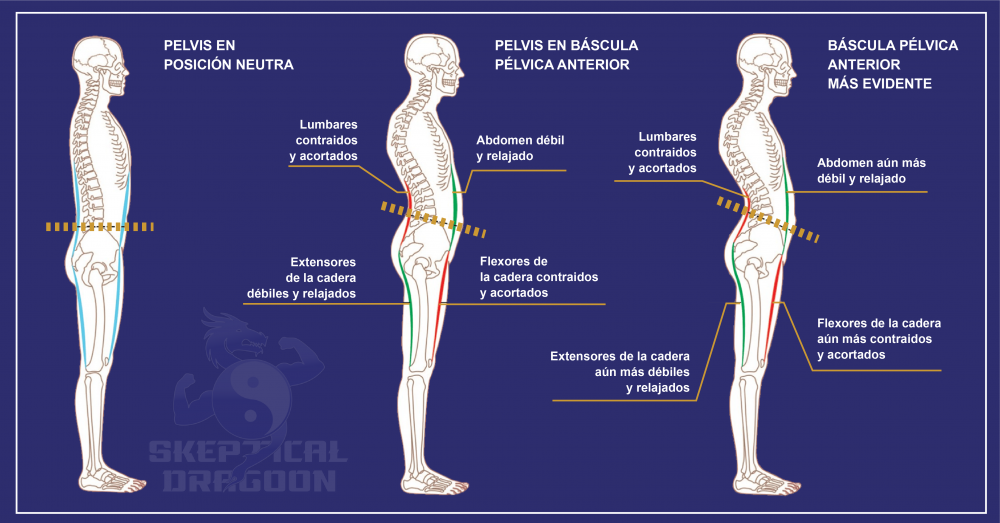 pelvis hiperlordosis báscula pélvica