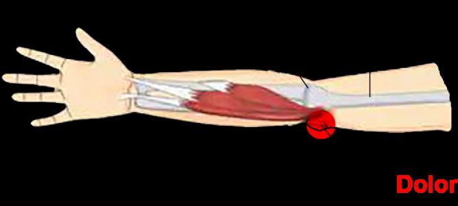 Epitrocleitis, codo de golfista