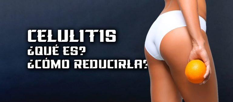 Celulitis – Qué es y Cómo Reducir la Celulitis