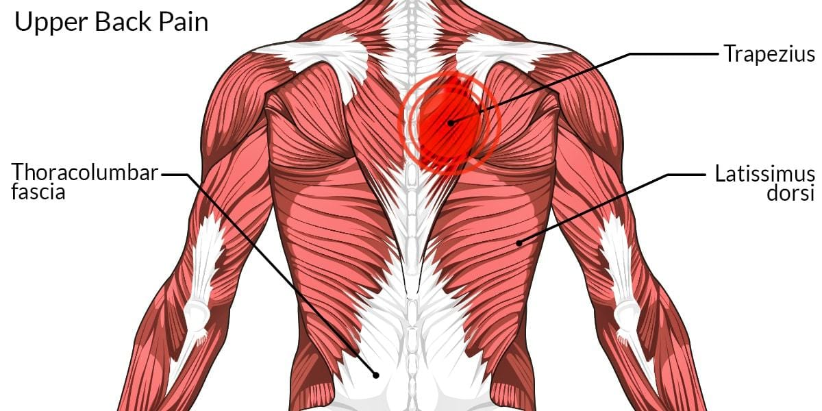 Dolor al esternón: pinzamiento del nervio en la espalda alta
